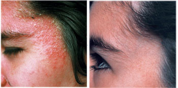 Mary Dolson Eczema Before & After